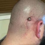 Patient Story: Jon Templeman 3