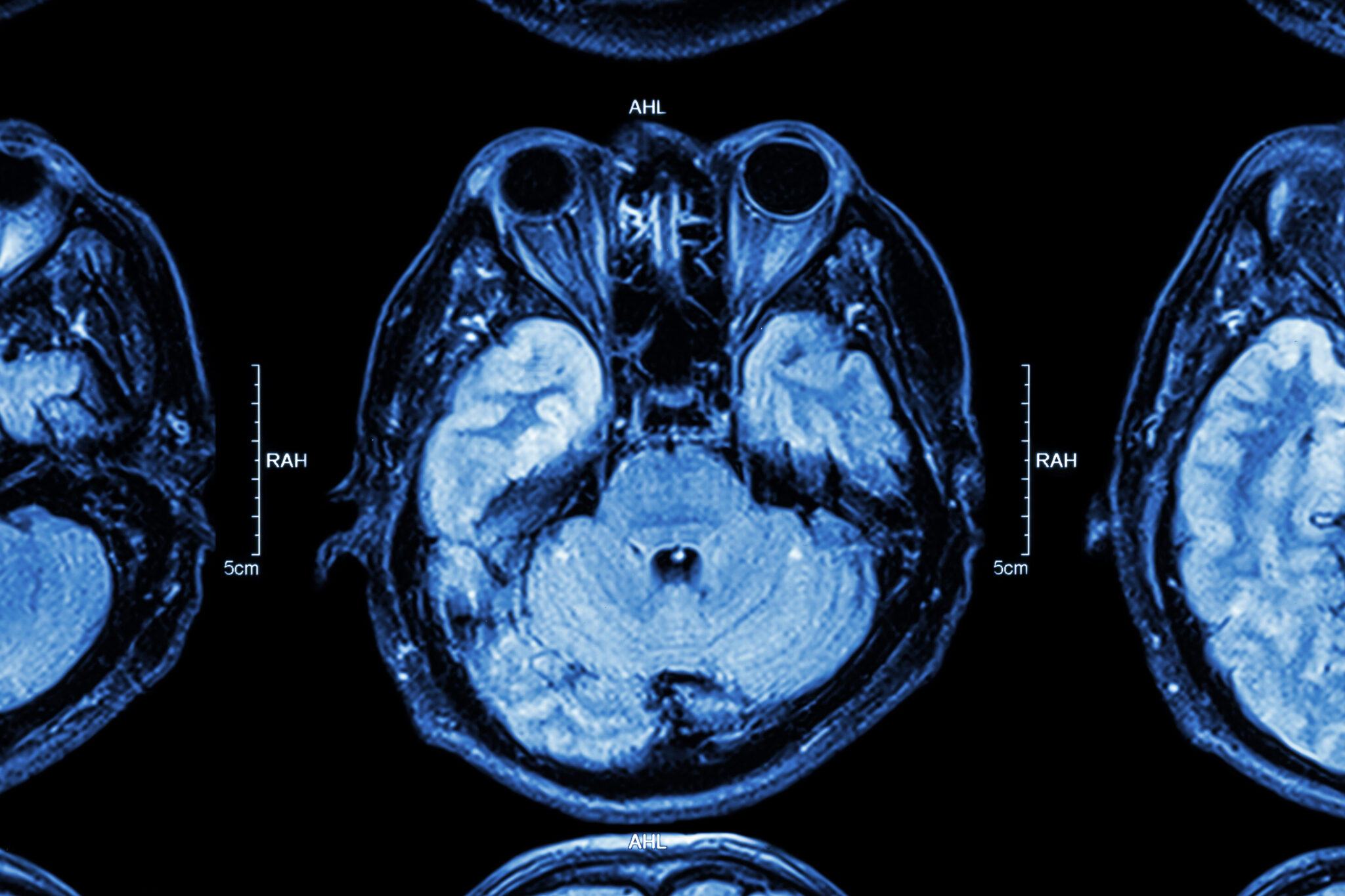 Neurosurgery types of brain surgery